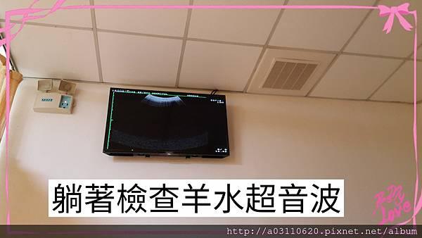 IMG_20170120_143557.jpg