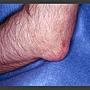 thumbnailCA2F0TEP.jpg