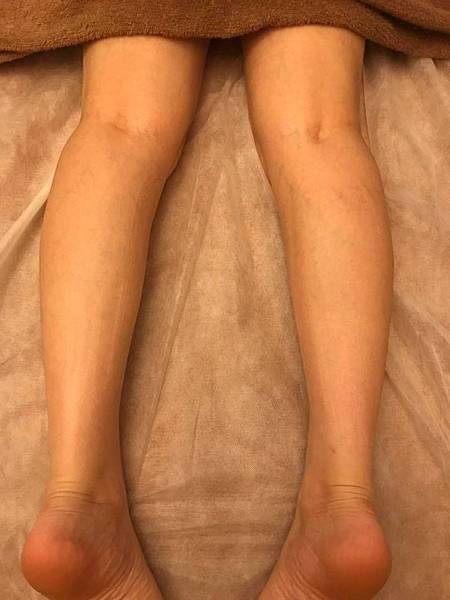 纖纖美腿淋巴後.jpg