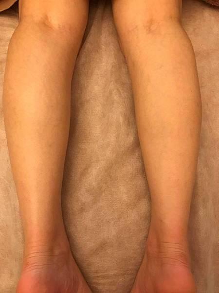 纖纖美腿按摩前1.jpg
