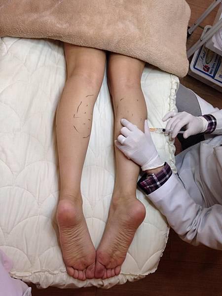 肉毒桿菌,瘦腿,蘿蔔腿,美麗晶華