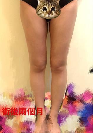 LS內外腿