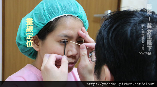 芙兒-割雙眼皮15