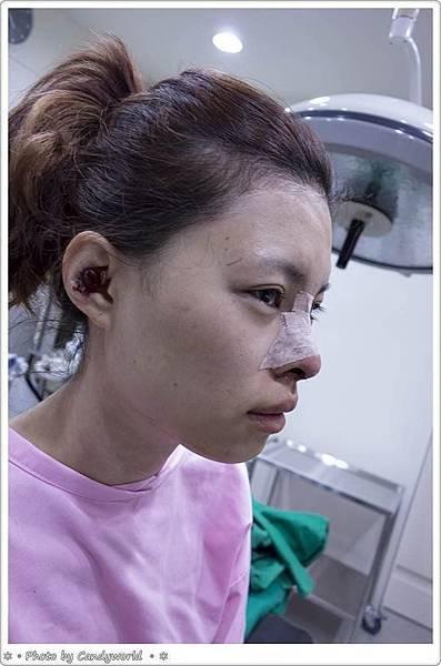 CANDY-3段韓式隆鼻