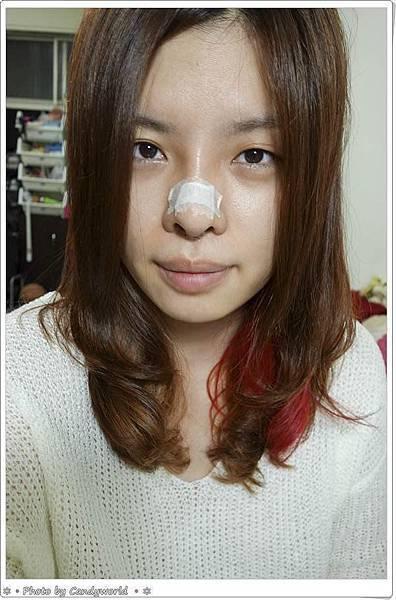 CANDY-三段式隆鼻003