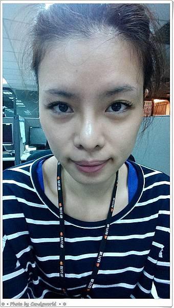 CANDY-三段式隆鼻018