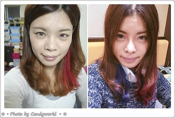 CANDY-3段韓式隆鼻015