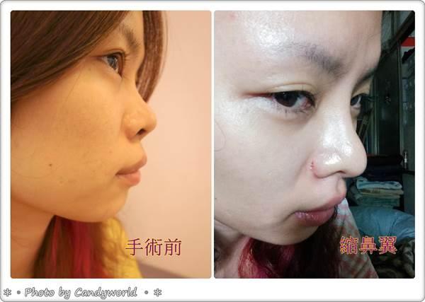 CANDY-3段韓式隆鼻023