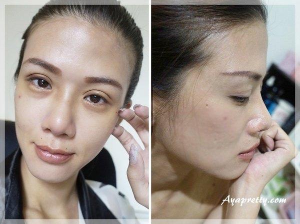 AYA三段式隆鼻-縫雙眼皮