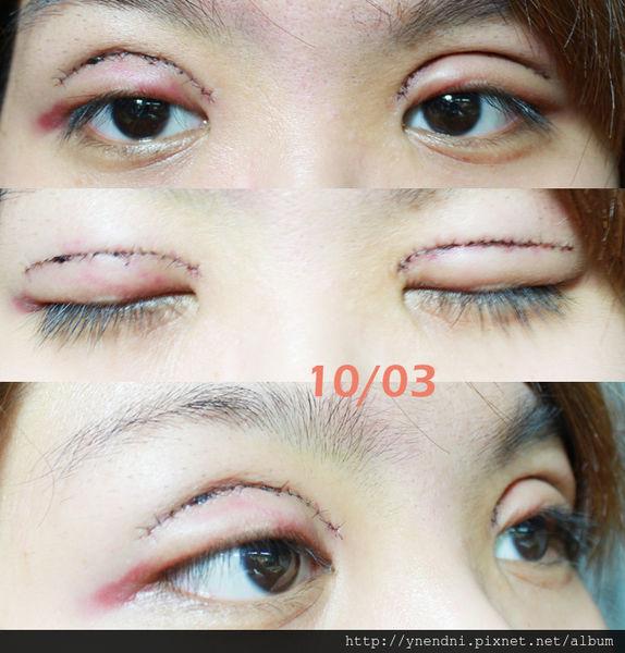 芙兒割雙眼皮