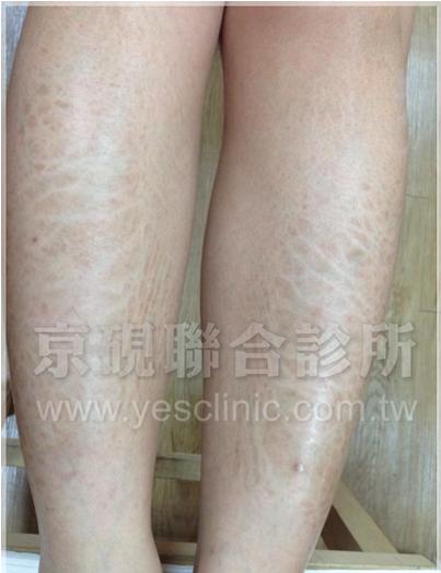 鬱血型皮膚炎.png