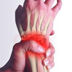 腕關節手腕肌腱炎