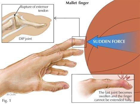 板機指腱消炎