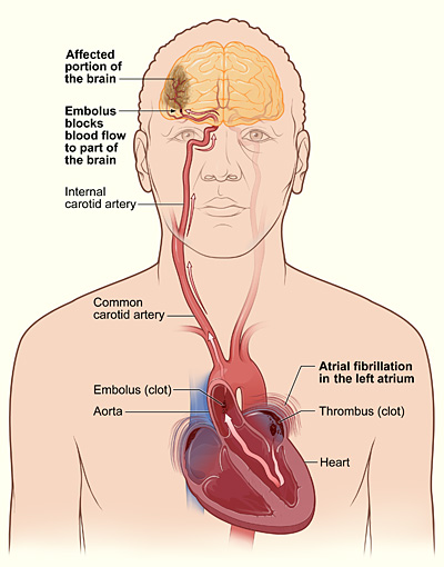 腦血管阻塞.jpg