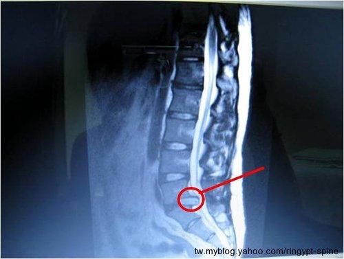 第五腰椎雖間盤突出壓迫神經.jpg