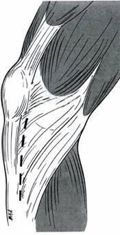 側面膝關節韌帶肌肉組織.jpg