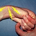腕關節扭傷.jpg