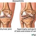 膝關節軟骨退化.jpg