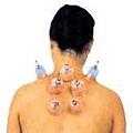 拔罐治療頸肩痠痛.jpg