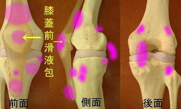 膝蓋_1~1.JPG