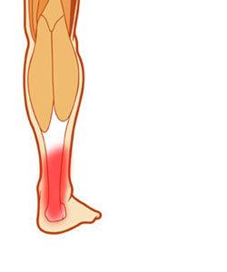 小腿肌肉痠痛.jpg