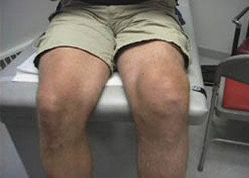 膝關節水腫.jpg