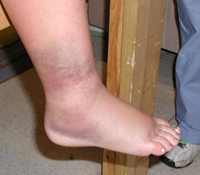 外踝關節微血管破裂出血.jpg