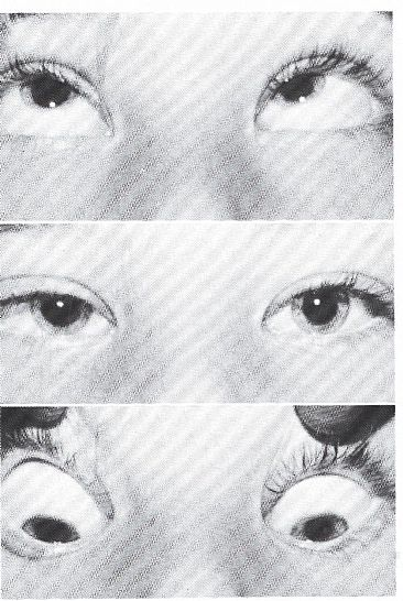 A esotropia with mongoloid lid fissures