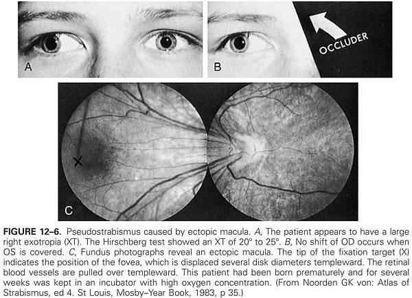 12-06 ectopic macula