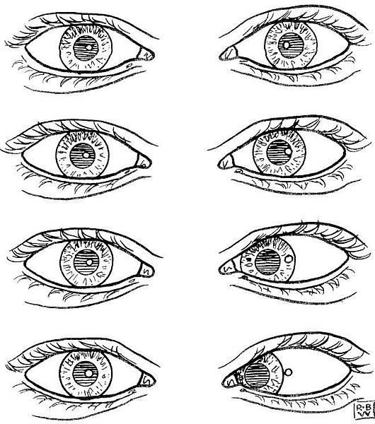 12-20 Hirschberg test