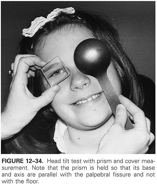 12-34 Head tilt test