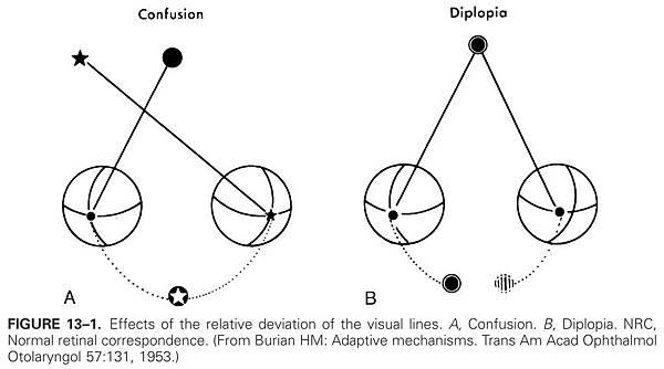 13-01 Confusion & Diplopia