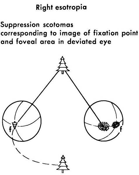 13-03 Suppression Scotomas