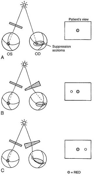 13-06 Suppression scotoma measurement with prisms