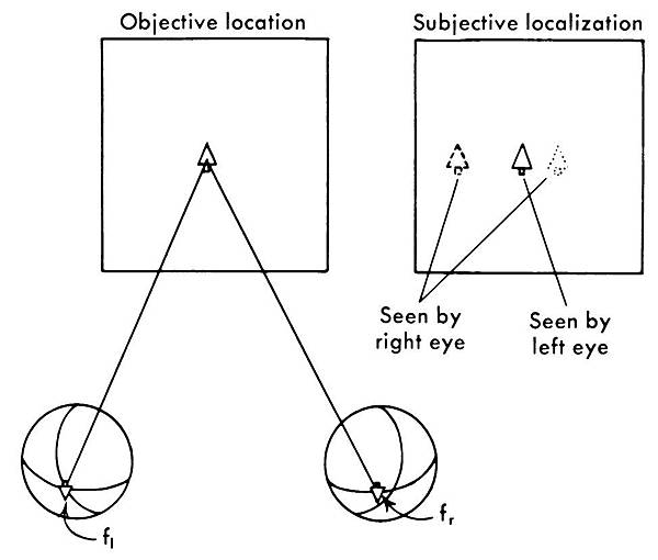13-22 binocular triplopia