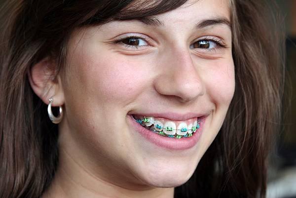 braces1.jpg