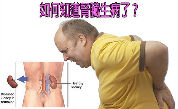 如何知道腎臟生病了