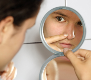 how-to-get-rid-of-blackheads-on-nose.jpg