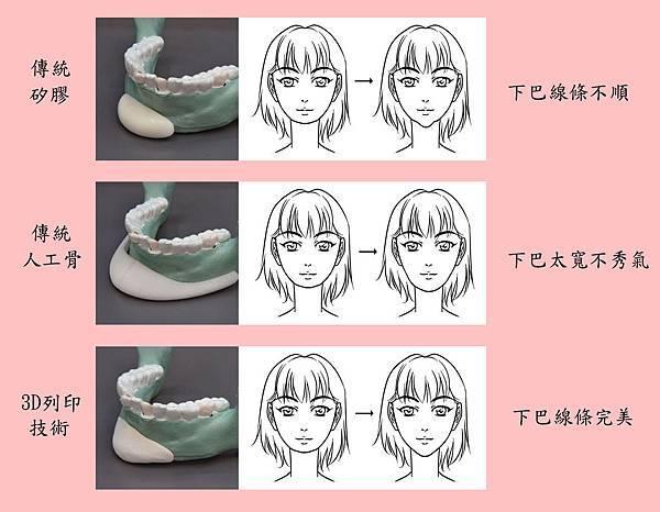不同材料的效果對比