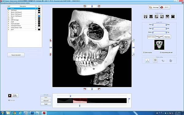 3D CT 電腦畫面