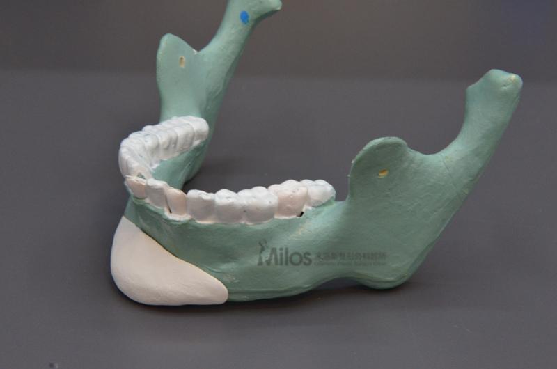 3D列印人工骨作法_浮水