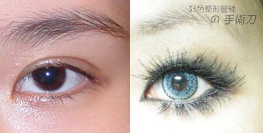 手術vs化妝