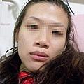 2010-06-03~~06-06生病住院 (2).JPG