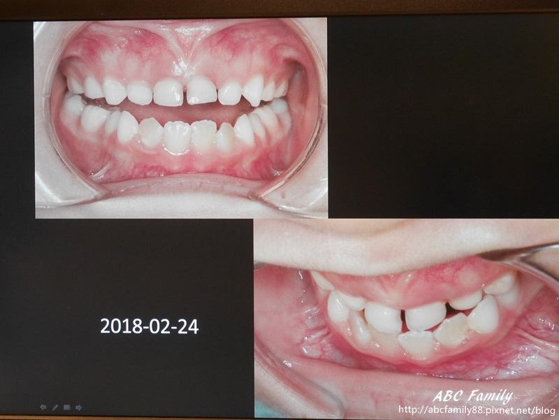 P2580864-2.jpg