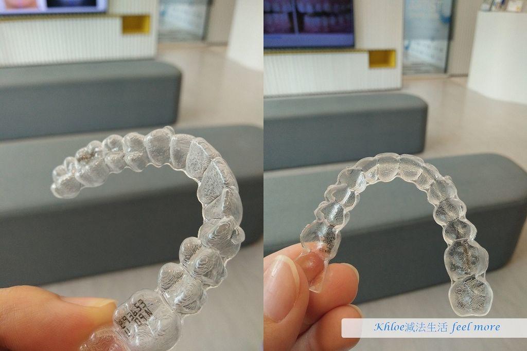 台中牙齒矯正推薦隱適美隱形牙套雅緹斯牙醫診所03.jpg