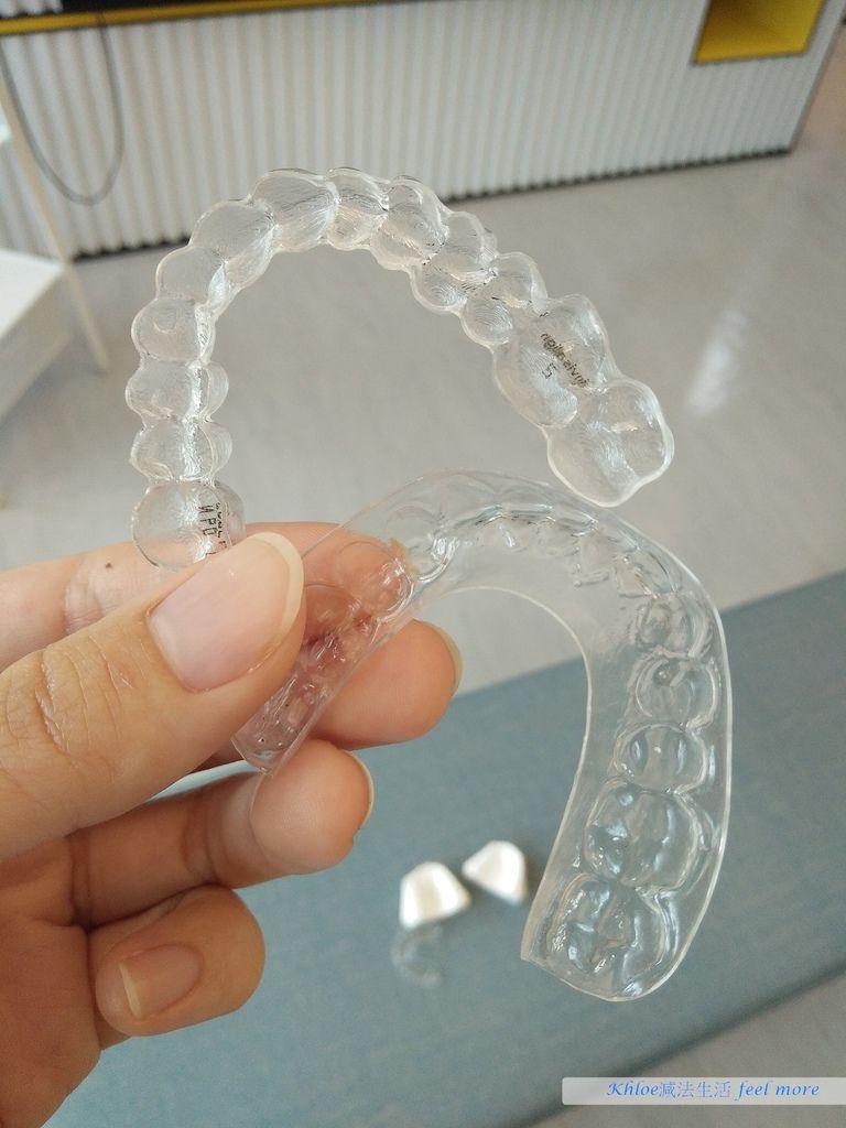 台中牙齒矯正推薦隱適美隱形牙套雅緹斯牙醫診所25.jpg
