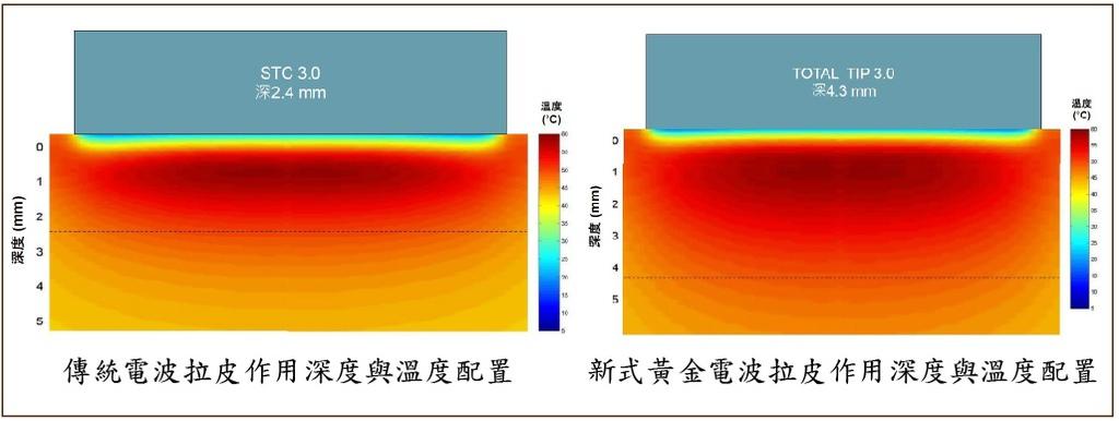 電波拉皮熱體積.jpg