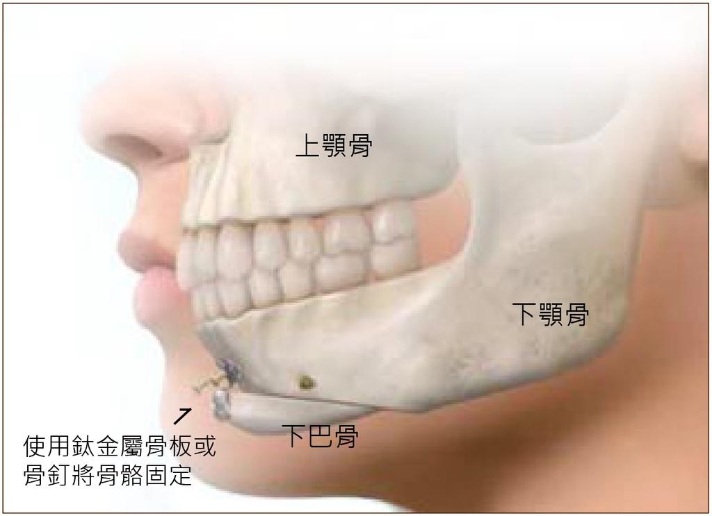 杏立博全 – 正顎手術 重塑臉形和諧度3.jpg