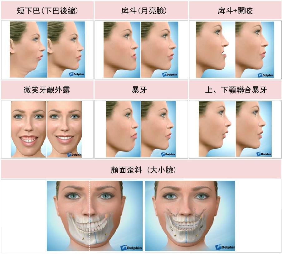 杏立博全 – 正顎手術 重塑臉形和諧度4.jpg