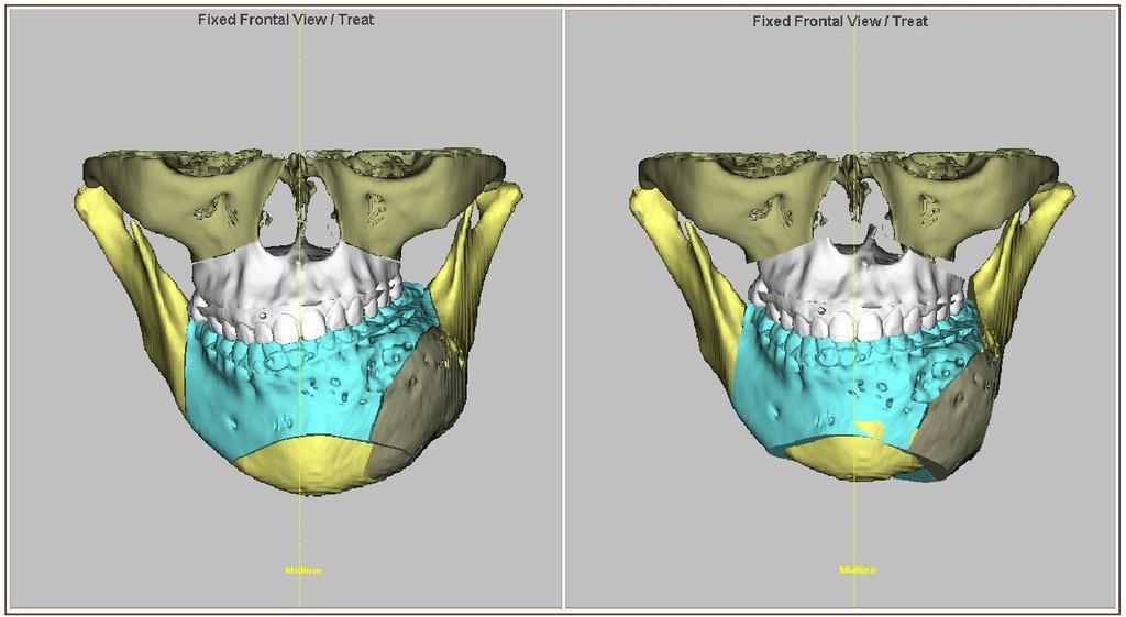 杏立博全 – 正顎手術 重塑臉形和諧度.jpg